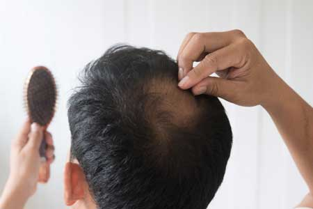 masturbasi rambut rontok